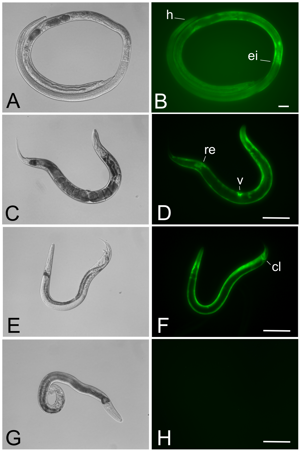 Parasitic and free-living adults from a stable transgenic line of <i>Strongyloides ratti</i> express GFP in the body wall-specific manner expected for the <i>Ss-act-2</i>prom::<i>gfp</i> transcriptional reporter.
