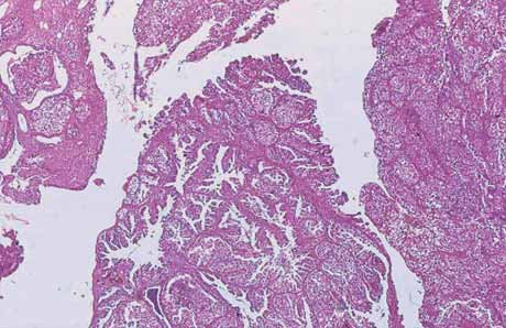 Klarocelulární karcinom cervixu. HE, 10×.