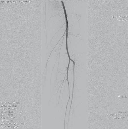 Angiogfrafie bércového řečiště zobrazuje volně průchodné dvě bércové tepny, bez průkazu periferní embolizace po úspěšné mechanické rekanalizaci.