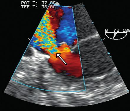 Jícnová echokardiografie. Regurgitační jet v místě perforace zadního cípu mitrální chlopně (šipka).