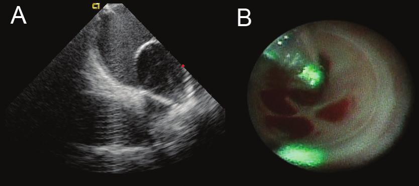 Ukázka balonkového katétru, který umožňuje aplikace laserové energie do antra plicní žíly  A. Zobrazení balonkového katétru umístěného v levostranných plicních žilách pomocí intrakardiální echokardiografie během ablace. B. Obraz z endoskopu umístěného uvnitř balonku, který ukazuje vnitřek ostia plicních žil s odstupy žilních větví. Zelenou barvou je označeno místo ablace.