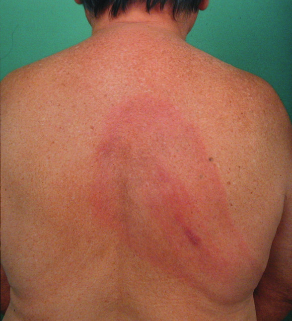 Erythema migrans na zádech