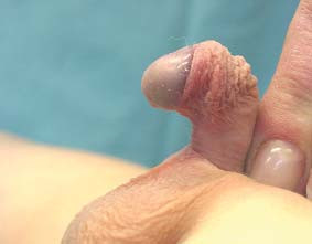 Obraz hypospadia sine hypospadia, nebo též short uretra. A - klidová fáze, B - ztopoření s angulací penisu.