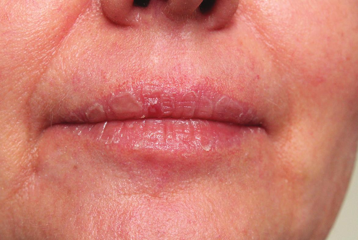 Suchá cheilitida při celkové léčbě acitretinem