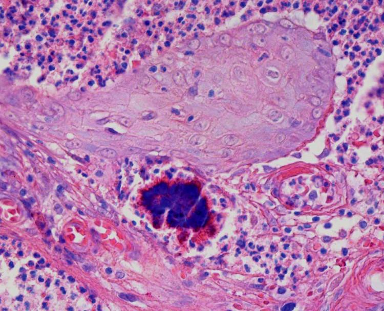 Obr. 3. Pacient č.2 – aktinomykotická drúza – farbenie Giemsa, zväčšenie 40x