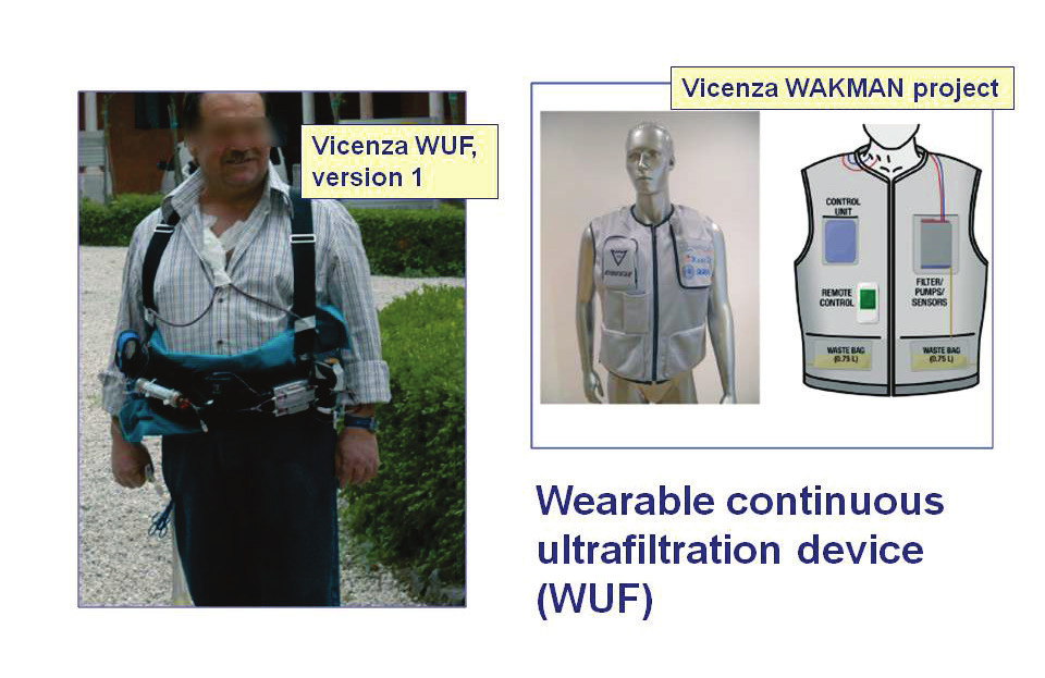 Fig. 7: The continuous ultrafiltration device from the Vicenza group of C. Ronco (left picture - the first version of the device, right picture – vest-contained WUF intended primarily for cardiac patients), (Ronco C et al: Nefrologia, 2011, 31(1):9-16; http://www.revistanefrologia.com)