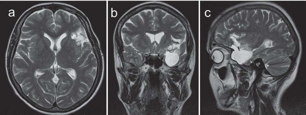Obr. 2a–c) Výsledek 84% resekce nízkostupňového gliomu u 49leté pacientky (pac. 18) v T2W obraze dokumentující kombinovanou resekci inzuly, meziotemporálních a T neokortikálních struktur, vhodné je povšimnout si matoucího rozsahu infiltrace bazálních ganglií na obr. 1d, jednalo se zřejmě o kolaterální edém.