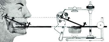 Schéma přenosu do semiadaptabilního artikulátoru Condylator (převzato z www.condylator.com)