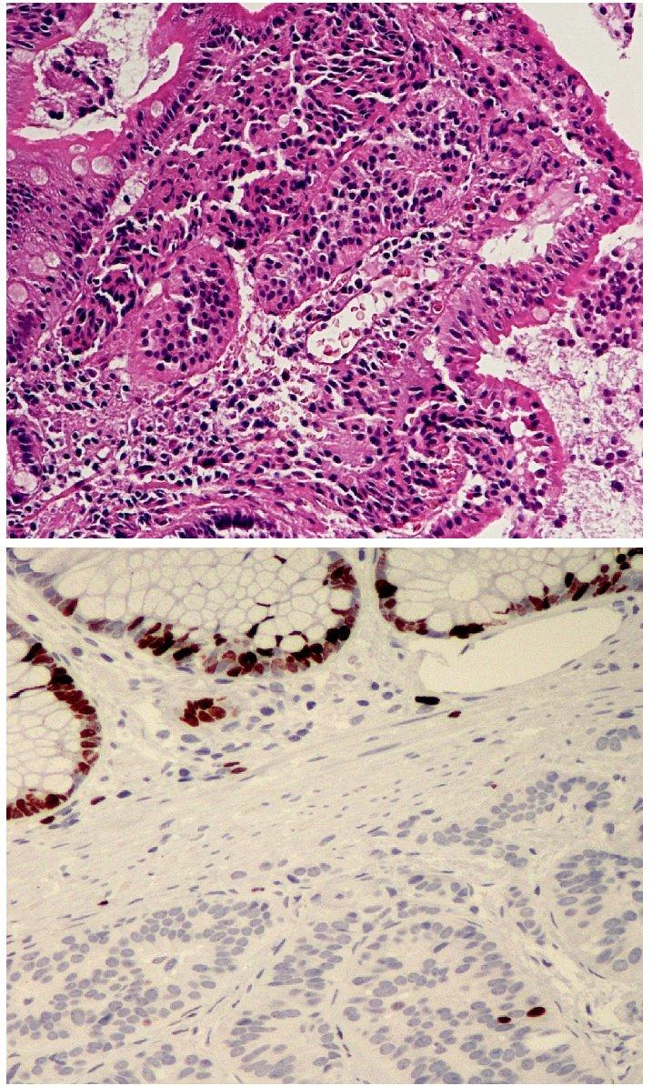 Dobře diferencovaný neuroendokrinní tumor. Nádor rostoucí pouze ve sliznici a submukóze, velikost menší než 1 cm. H&E, 100krát (A), zcela ojedinělá jaderná pozitivita Ki-67. 200krát (B)