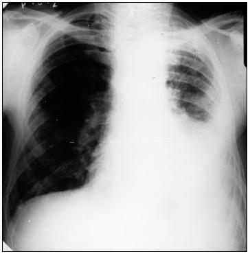 RTG pľúc v PA projekcii – diagnóza malígny mezotelióm pleury vľavo, fluidotorax laterobasalis l. sin.