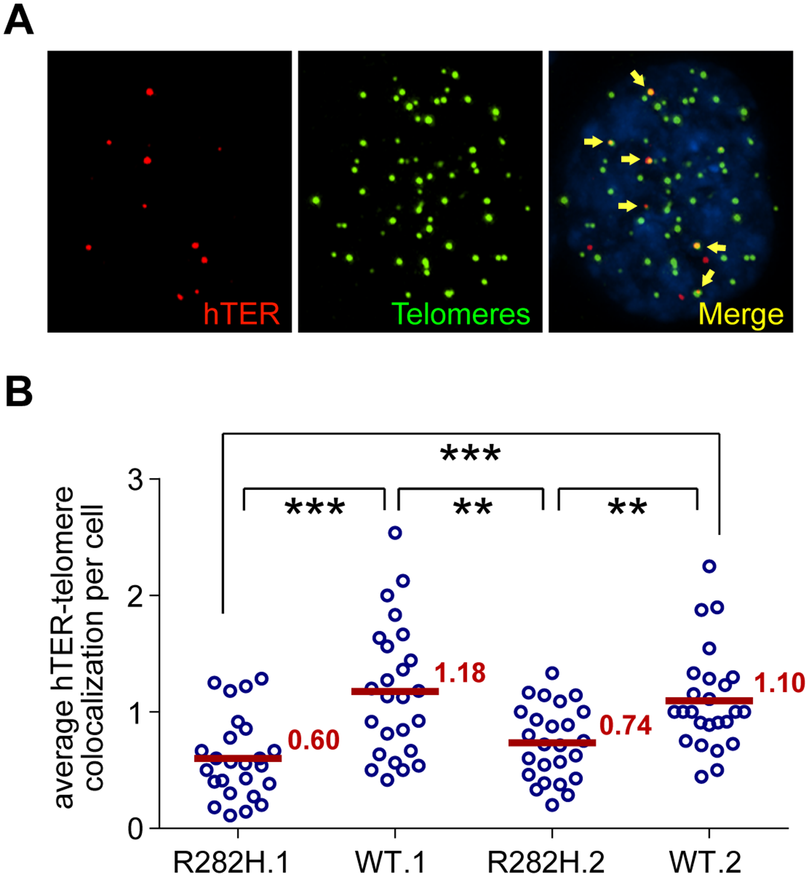 TIN2-R282H mutation reduces colocalization between endogenous telomerase RNA and telomeres.