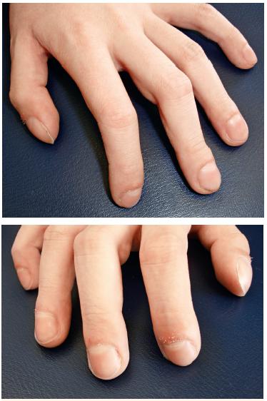 Obr. 3, 4. Paličkové prsty rukou. Fig. 3, 4. Clubbing of the fingers.