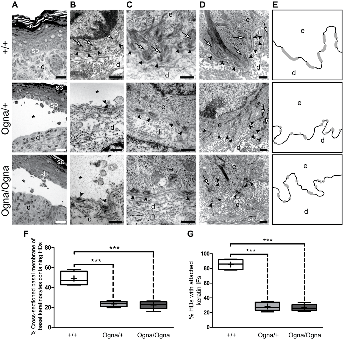 Histological and ultrastructural abnormalities of Ogna mouse skin.