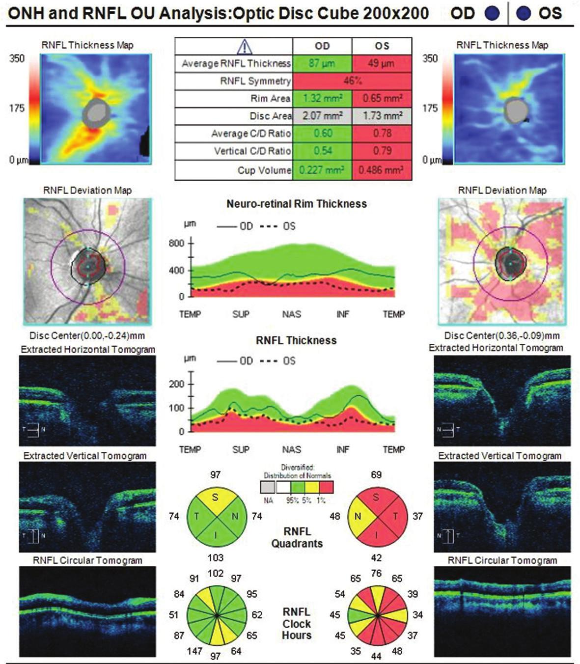 Optická koherenční tomografie OPL pacienta dlouhodobě aplikujícího lokální kortikosteroidní masti na obličej