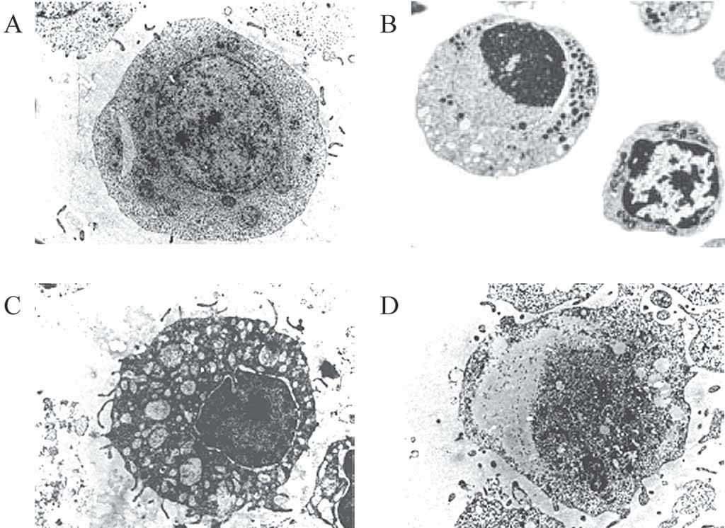 Buňka s normální, apoptotickou, autofagickou a nekrotickou morfologií. Nasnímáno elektronovým mikroskopem, zvětšení 4 400×, upraveno dle [91]. U zdravé buňky pozorujeme obvyklý tvar jádra i celé buňky (A), u apoptotické chromatin kondenzovaný v jádře a zmenšení objemu buňky (B), u autofagické výrazně vakuolizovanou cytoplazmu a jádro bez kondenzovaného chromatinu (C) a u nekrotické ztrátu integrity membrány a buněčného obsahu (D).