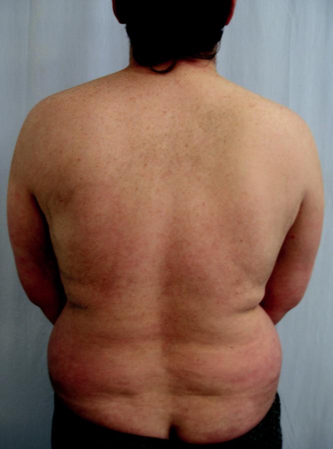 Remise onemocnění po 6 měsících terapie efalizumabem.