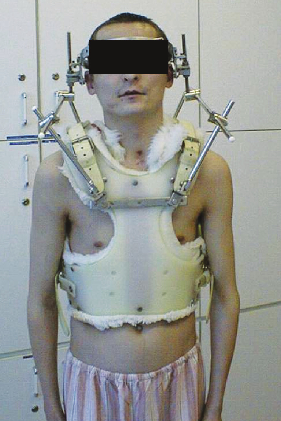Naložený Halo vest Fig. 5. A halo vest applied