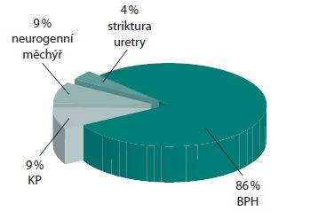 Zastoupení diagnóz u pacientů s léčenou cystolitiázou Graph 1. The distribution of diagnoses in patients with treated bladder stones
