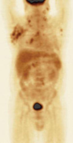 Patologicky zvýšené kumulace 18fluorodeoxyglukózy v axilárních, krčních i mediastinálních uzlinách.