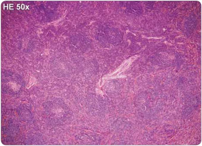 Castlemanova choroba, plazmocelulární typ, hematoxylin-eozin, zvětšení 50×. Struktura lymfatické uzliny je zachována, ale interfolikulární oblasti jsou expandované. Lymfatické folikuly mají přibližně stejnou velikost, ojediněle jsou jejich zárodečná centra regresivně změněná.