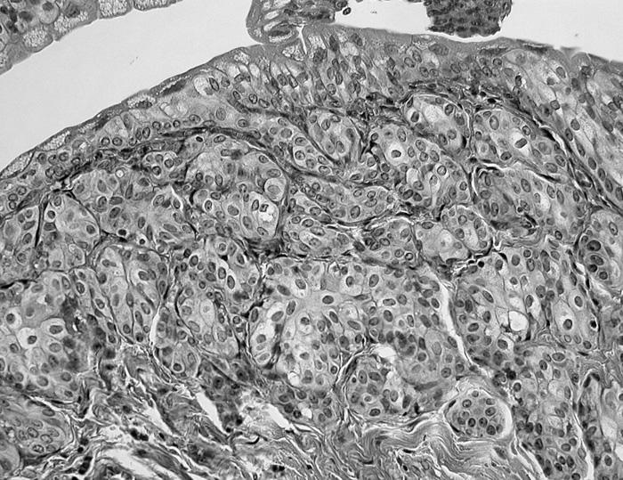 Invertovaný papilom ureteru. Náhodný nález v nefrektomii pro světlobuněčný karcinom ledviny. Absence mitóz a atypií (HE, 200krát)