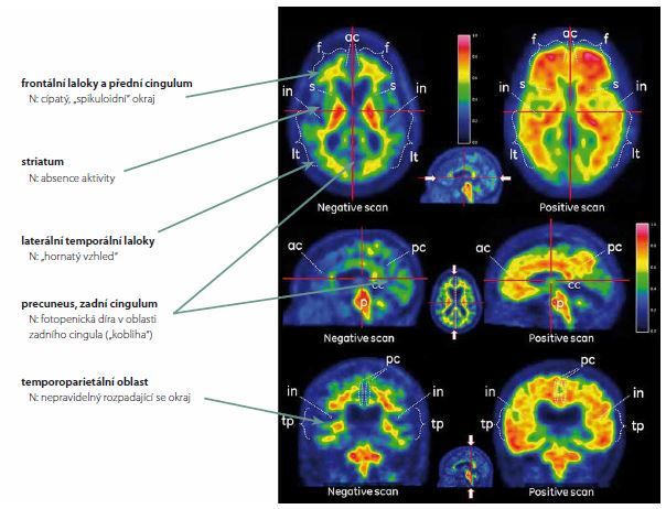 Rozdíl mezi normálním PET skenem mozku (levý sloupec) a skenem zvýšeného mozkového amyloidu (pravý sloupec).