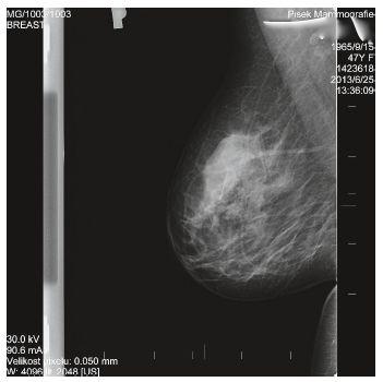 Mamografický obraz P prsu