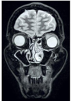 MRI očnic STIR, koronární řez – infiltrát levé orbity s útlakem bulbu