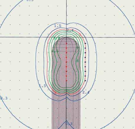 Izodozový plán pro ozáření vaginálním válcem.