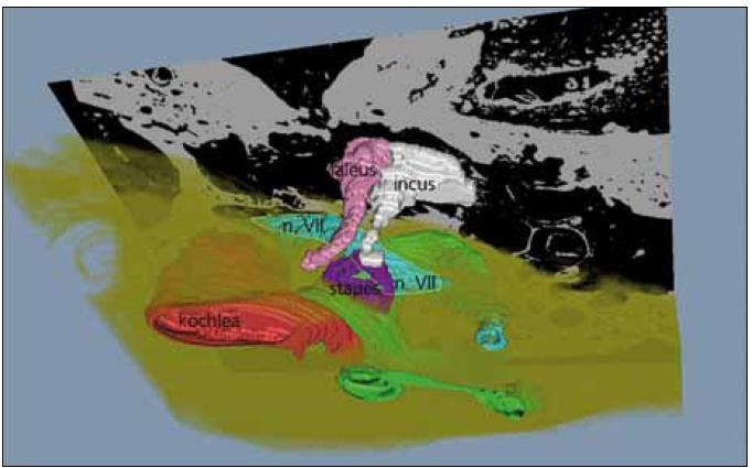 Obr. 1b. Trojrozměrná rekonstrukce spánkové kosti a středoušních struktur. Patrny jsou středoušní kůstky, hlemýžď a polokruhovité chodbičky. Dehiscence kanálu lícního nervu (bleděmodrá barva) zvýrazněna tenkou bílou čarou.