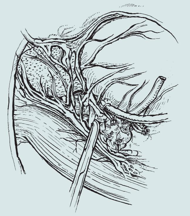 Anatomie pánve – linie disekce v případě šetření nervově-cévního svazku [3].
