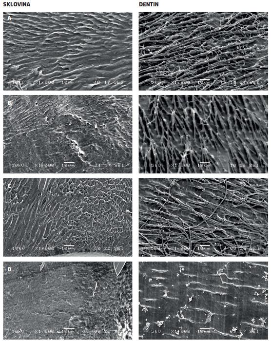 Povrch kompozitní výplně po odleptání přilehlé skloviny a dentinu: A) výplň bondována adhezivem GLU, B) adhezivem CLF, C) adhezivem ADP, D) adhezivem IBO, zvětšení 1000x, SEM