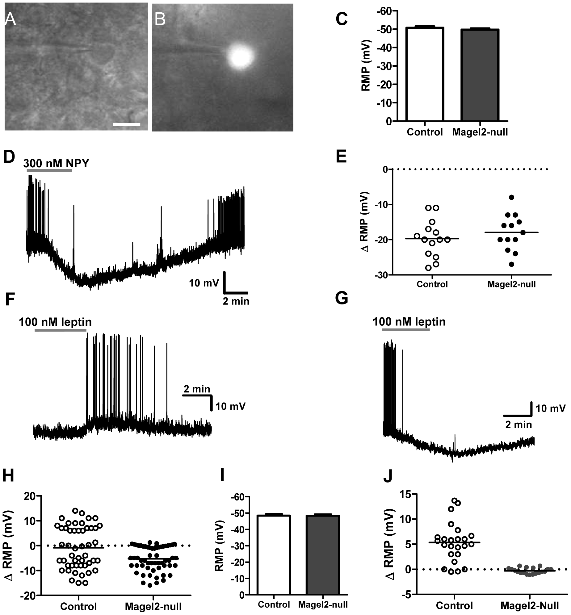 Magel2 is required for the leptin-induced depolarizing response in POMC neurons.