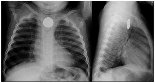 Předozadní a boční rtg snímek hrudníku – mince je uložena v jícnu. Fig. 2. Anteroposterior and lateral chest X-ray where is the coin in esophagus.