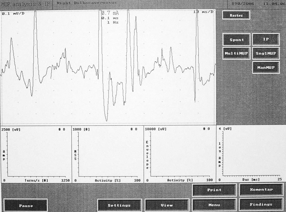 Fig. 3. Electromyographic record of the muscle contraction