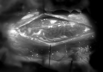 """První operace – nález """"rete"""" dilatovaných odvodných žil na dorzálním povrchu míchy."""