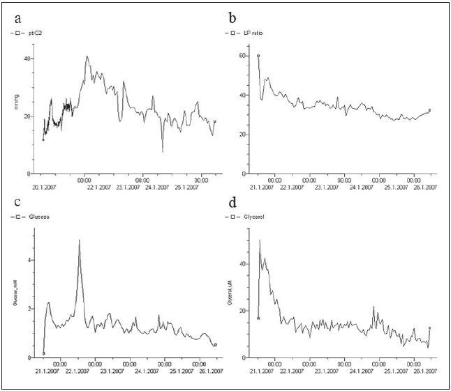 Multimodální monitorování u vazospazmů. Tkáňová oxymetrie demonstruje dostatečnou oxygenaci mozkové tkáně v povodí ACM dx (nad 15 mmHg; a). Poměr mezi laktátem a pyruvátem byl v počátku kolem 40, ale v průběhu monitorování měla hodnota klesající tendenci a blížila se k 30 (b). Hodnoty glukózy se držely kolem 1 mmol/ l, tedy na dolní hranici normy (c). Hodnoty glycerolu byly po celou dobu monitorování naprosto fyziologické (d).