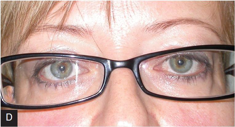 Pacientka s bilaterální restrikcí obou vnitřních přímých svalů, více vlevo (a). Po operaci bylo docíleno paralelního postavení (b). Po nasazení vlastní vysoké myopické korekce došlo ke ztrátě fúze a objevila se opět diplopie (c). S prizmatickou korekcí je postavení očí paralelní a pacientka bez diplopie (d)