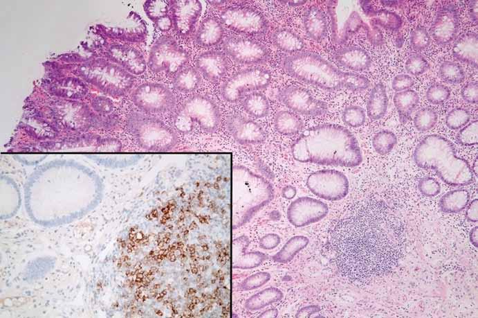 Tubulární adenom s low-grade dysplazií, v jehož stromatu je drobný lymfoidní agregát (hematoxylin-eozin, původní zvětšení 100×). Lymfoidní agregát je kolonizován CD23-pozitivními buňkami CLL/SLL (vložený detail, původní zvětšení 400×). Fig. 4. Tubular adenoma with low-grade dysplasia with a lymphoid tissue in its stroma (hematoxylin-eosin, 100× magnification). The lymphoid tissue is colonized by CD-23 positive CLL/SLL cells (detail, 400× magnifi cation).