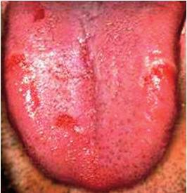Povlak je normálný, na povrchu jazyka sú čerstvé erozie. Stav je u recidívnej infekcii <i>Helikobakter pylori</i> (Ďurovič)