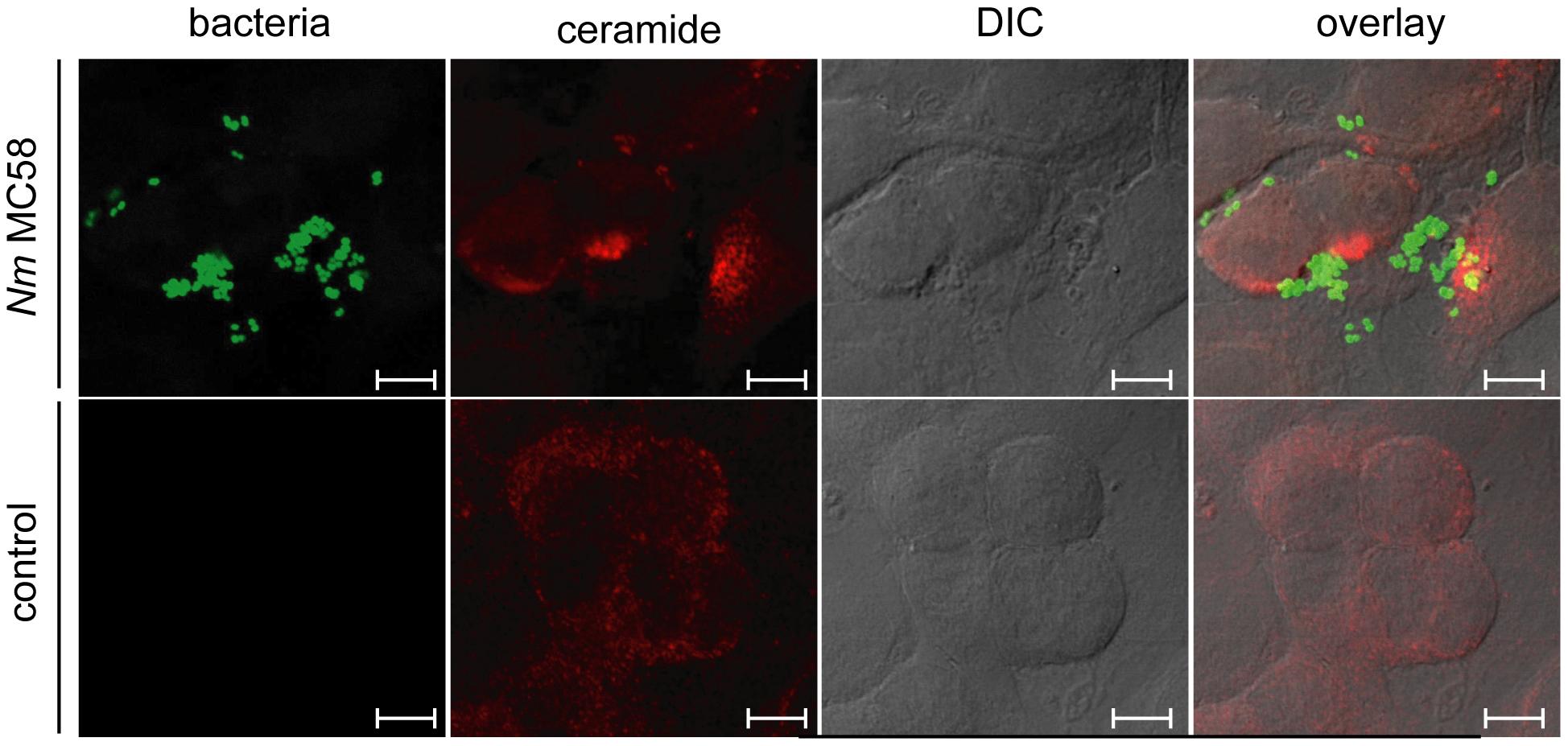 <i>N. meningitidis</i> induces the formation of ceramide-enriched membrane platforms on brain endothelial cells (HBMEC).