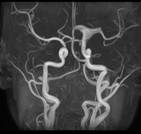 MRI AG s nálezem aneurysmatické dilatace intrakraniální části ACI přestupující vlevo na ACA a ACM