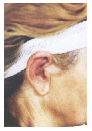 Výrazne sčervenené a zhrubnuté ušnice bolestivé na tlak pri relabujúcej polychondritíde