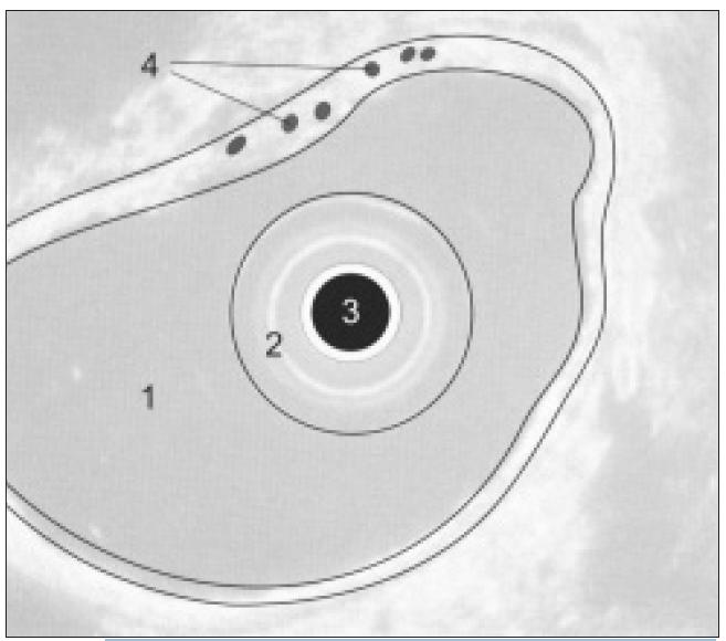 Schéma EUS obrazu žaludku: 1. lumen žaludku, 2. balonek endosonografu, 3. endosonografická sonda, 4. intramurální varixy.