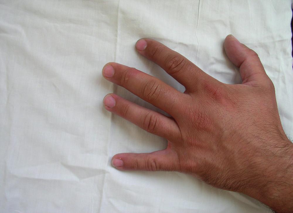 Erytematozní otok a vesikula na III. prstu levé ruky po poranění ostnatcem (archív KICH FN Brno)