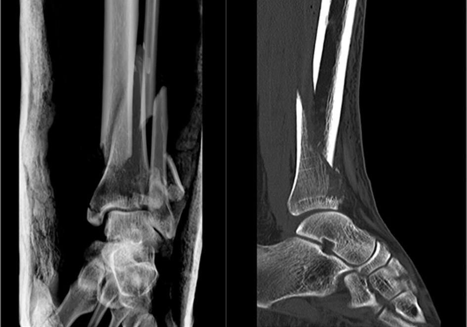 Vstupní rtg recentně po úrazu Fig. 5: Initial X-ray shortly afer injury