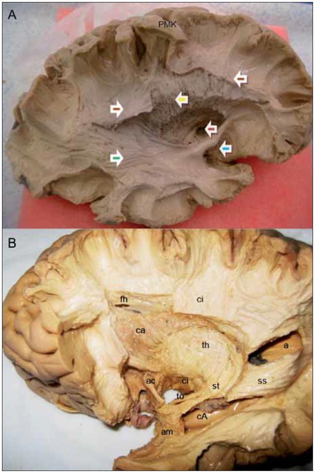 Obr. 5a. Disekce zobrazující průběh pyramidové dráhy přímo z motorické oblasti pro ruku, patrné jej její povrchové uložení pod horním periinzulárním sulkem. Šipky – fasciculus longitudinalis superior (hnědá), fasciculus fronto-occipitalis inferior (zelená), fasciculus uncinatus (modrá), commissura anterior (červená), pyramidová dráha z primární motorické kůry (PMK) po odstranění claustra, putamen, pallidum externum a internum (žlutá šipka). Obr. 5b. Disekce ozřejmující vztah bazálních ganglií a drah ke komorovému systému, resekce fasciculus uncinatus, ozřejmení thalamu se vstupem optického traktu, laterálně od okcipitálního rohu postranní komory stratum saggitale obsahující optickou radiaci a fasciculus longitudinalis inferior. Frontální roh postranní komory (fh), nucleus caudatus (ca), capsula interna (ci), commissura anterior (ac), thalamus (th), stratum saggitale (ss), atrium komory (a), amygdala (am), cornu Ammonis (cA), tractus opticus (to) a stria terminalis (st).