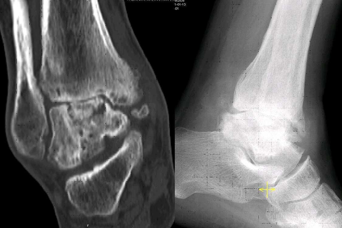 Avaskulární nekróza těla talu s rozvojem artrózy (CT koronální rovina a rtg bočný snímek)