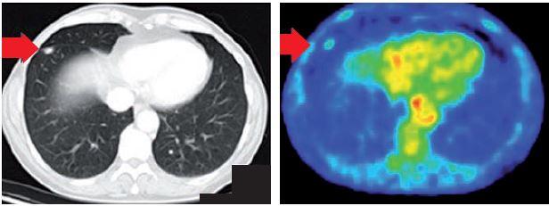 Obr. 2. PET/CT ložisko v dolním laloku.