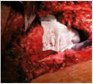 Aplikace Traumacelu TAF na resekční plochu hrudních obratlů.